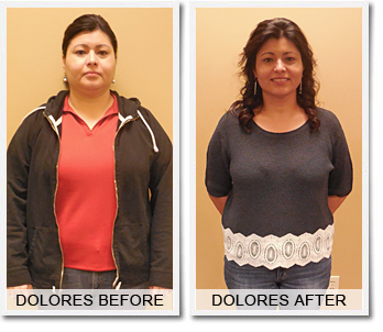 Dolores's Weight Loss Success Story