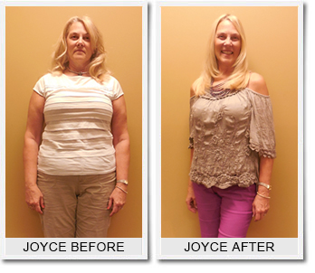 Joyce S: Weight Loss Success Story